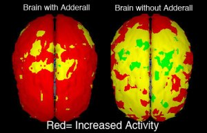 Brain Chemical Responses with Adderall Versus Without Adderall