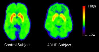 Imaging of the Normal Brain in Contrast to the ADHD brain