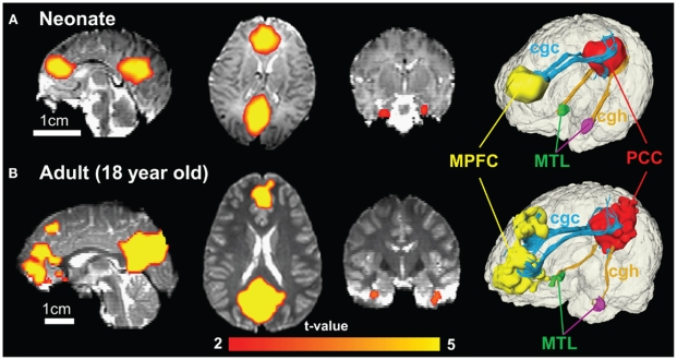 The color of connected brain clusters encodes t values. 3D visualization on the most right panels reveals clearly that cingulate gyrus part of cingulum (cgc) connects MPFC and PCC and cingulum hippocampal part (cgh) connects PCC and MTL for both neonate and adult brain